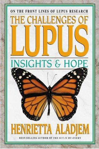 Download The Challenges of Lupus